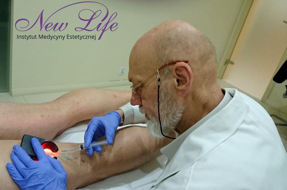 skleroterapia dr. Drązkiewicz